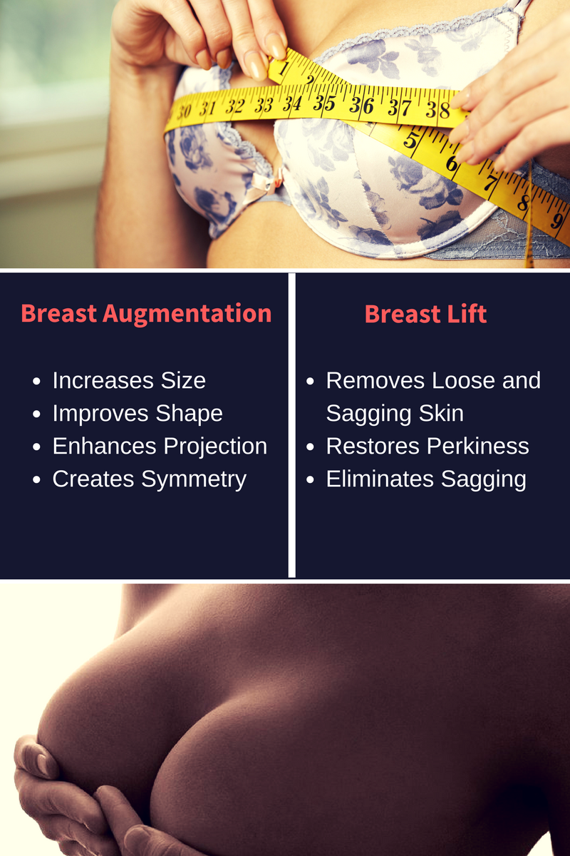 Miami Breast Lift | Ft. Lauderdale Breast Augmentation for Sagging Breasts