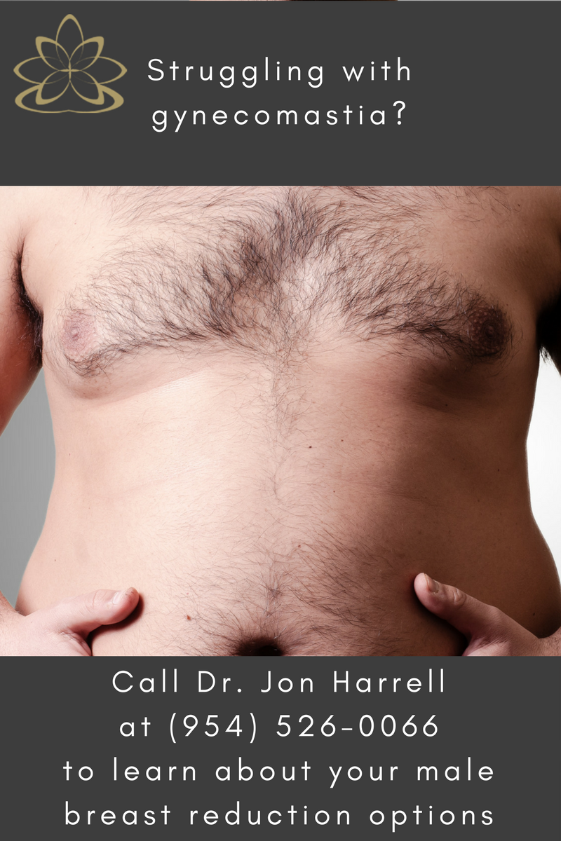 Male Breast Reduction Miami | Gynecomastia Ft. Lauderdale