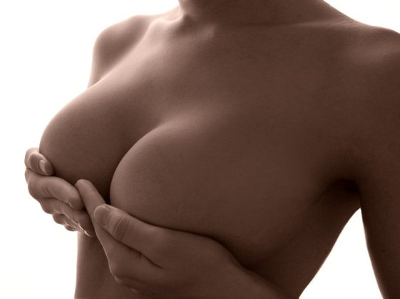 Minimizing Scars from Breast Augmentation Surgery | Ft. Lauderdale