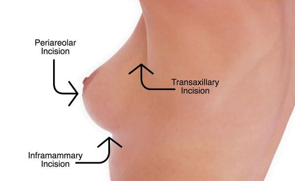 Miami Breast Augmentation Incision Options