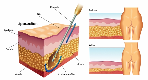 How Liposuction Works | Miami Liposuction