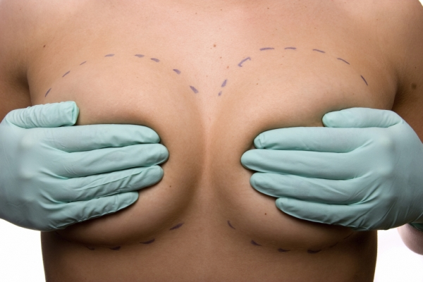 3 Tips to Prepare for Breast Augmentation Surgery & Recovery