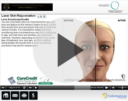 Video - Laser Skin Rejuvenation in Fort Lauderdale, Florida